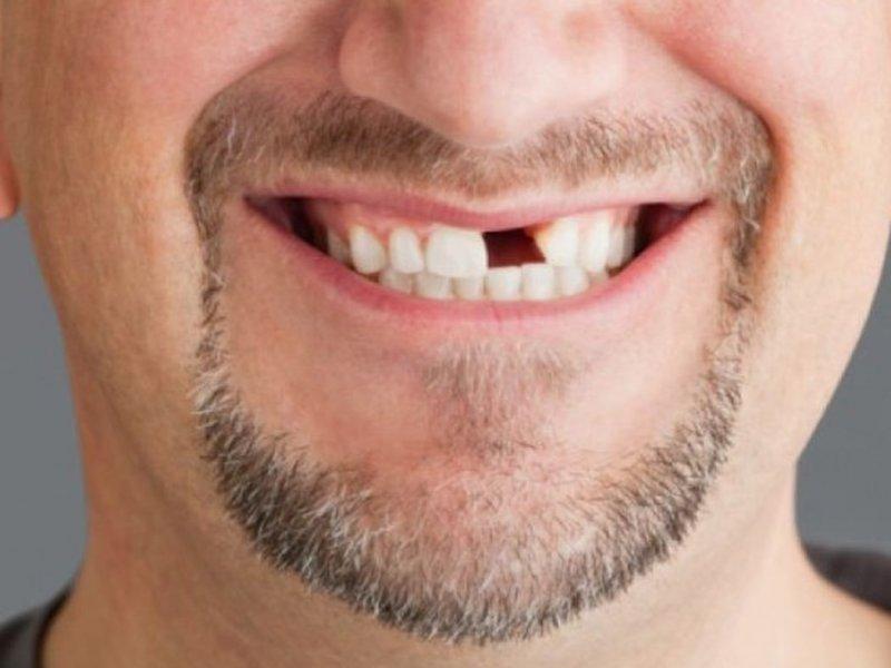 Обнаружены клетки, позволяющие выращивать новые зубы