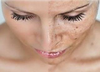 Правда зеркала: «слезы» кожи