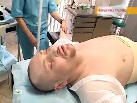 Прощай, жир: похудение на операционном столе