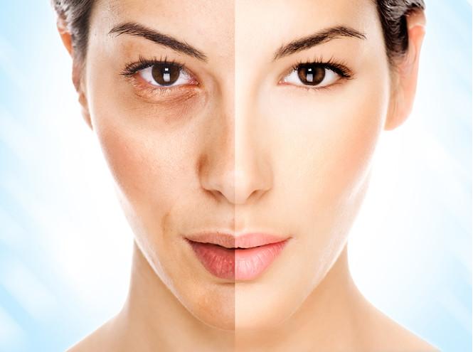 Почему морщины и естественное старение станут модными?