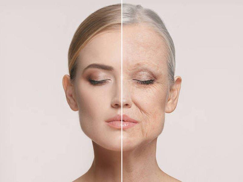 Поэтапное старение: 4 типа возрастных изменений кожи
