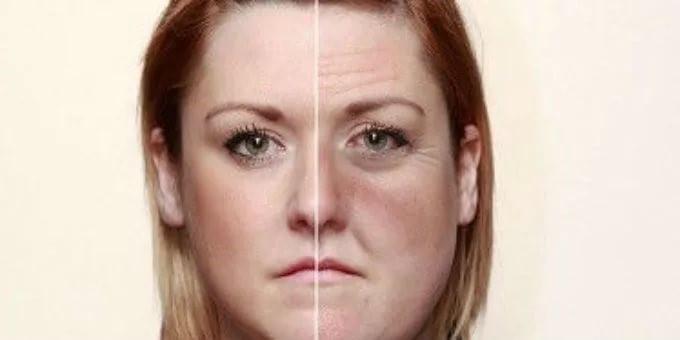 Влияние алкоголя на состояние кожи