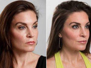 Новый тренд: женщины избавляются от «лица стервы»