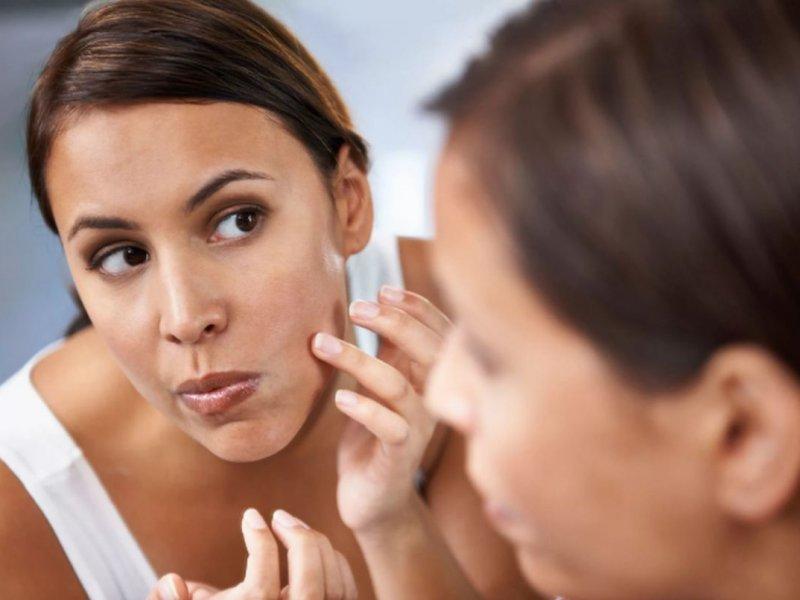 Косметологи назвали 9 доступных продуктов от прыщей
