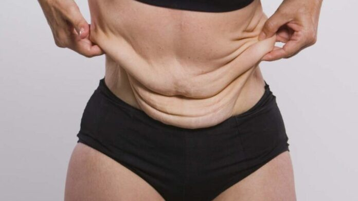 Как предотвратить появление растяжек при похудении: советы экспертов
