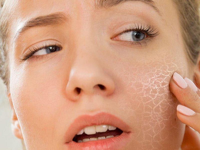 Слишком сухая кожа говорит о проблемах в организме? Отвечает дерматолог