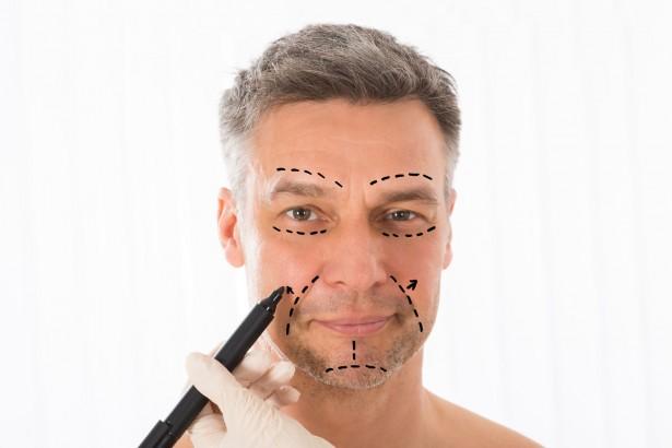 ТОП-5 мужских пластических операций