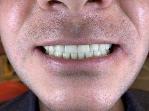 Поможет ли ботокс при зубовном скрежете