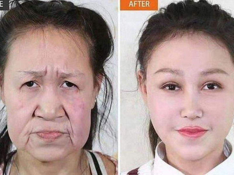 15-летней девушке с прогерией из Китая хирурги изменили внешность, убрав признаки старения