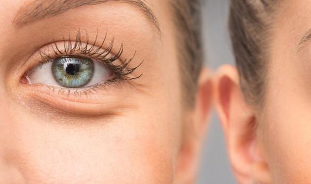 6 быстрых способов убрать отечность глаз после сна