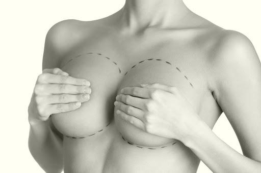 Маммопластика – прекрасная возможность подарить себе красивую грудь