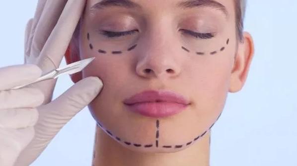Эндоскопическая подтяжка средней части лица или как отсрочить старость