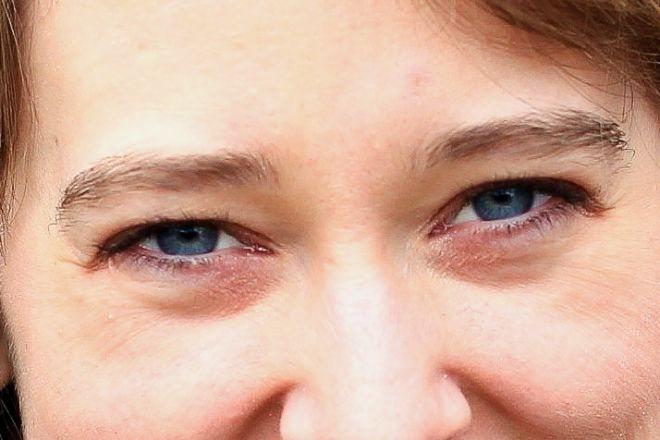 Мешки под глазами и натуральные способы их устранения