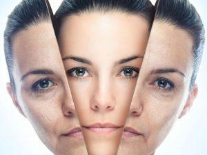 Чем заменить ботокс: доступные методы омоложения кожи