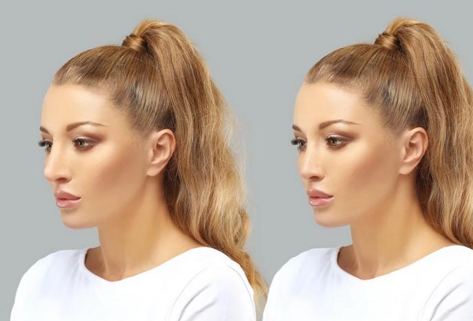 Красота до кончика носа: для чего нужна ринопластика