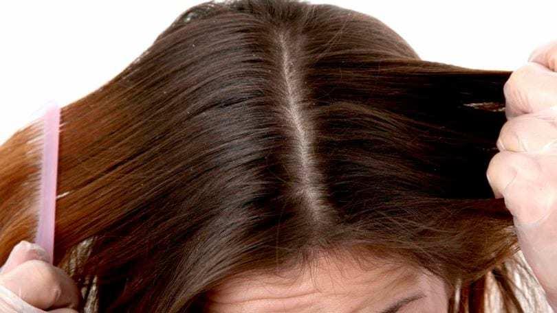 Как справиться с сухостью кожи головы?