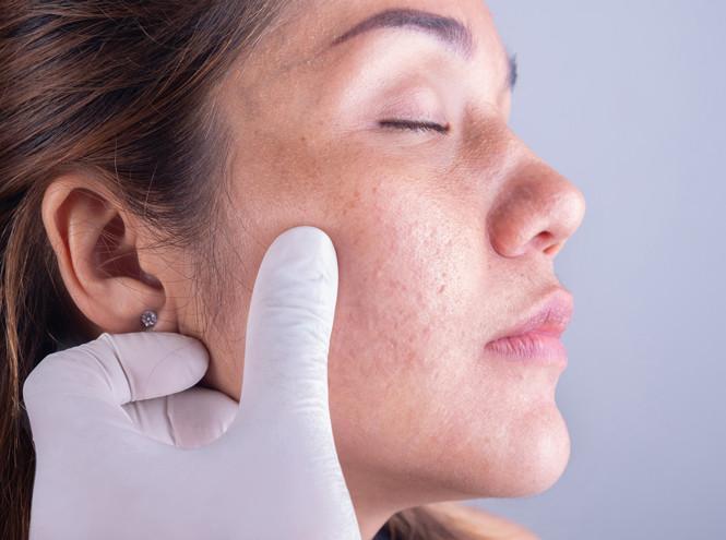 Кремы, филлеры и лифтинг-маски — альтернатива подтяжкам