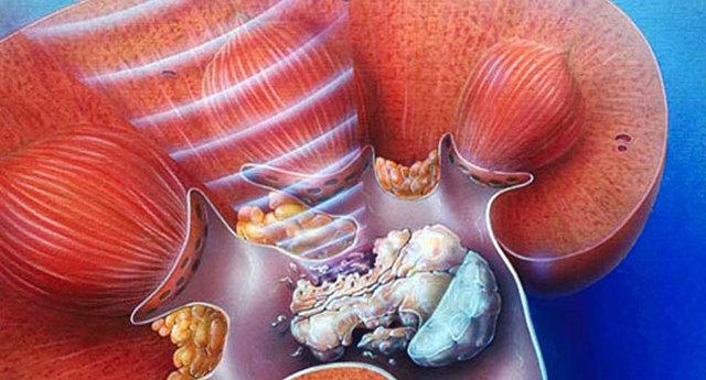 Коралловидные камни в почках: причины, методы лечения