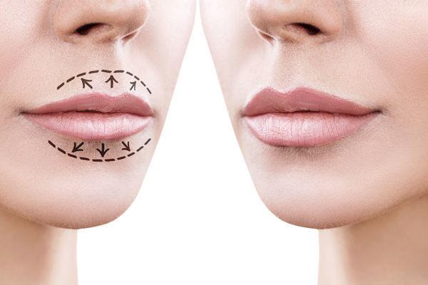 Красивые губы без операции. Все возможно!?