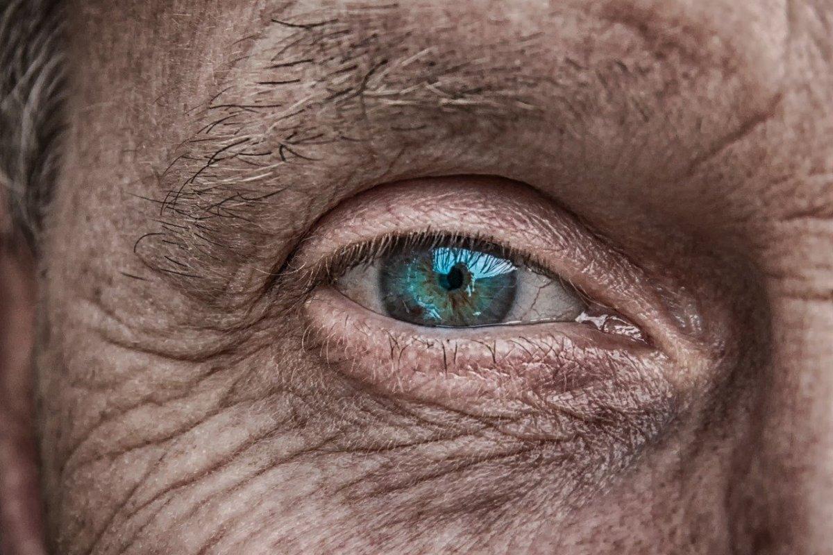 Гусиные лапки: что действительно помогает от морщин вокруг глаз