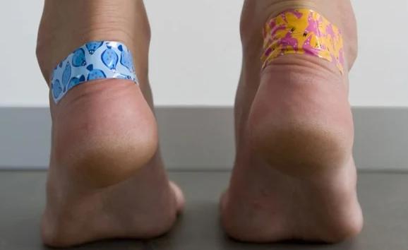 Натертости: 5 домашних процедур для лечения раздражения на коже