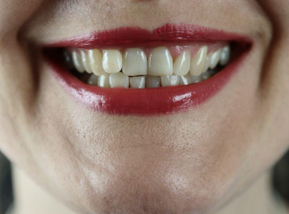5 способов борьбы с пигментацией вокруг рта