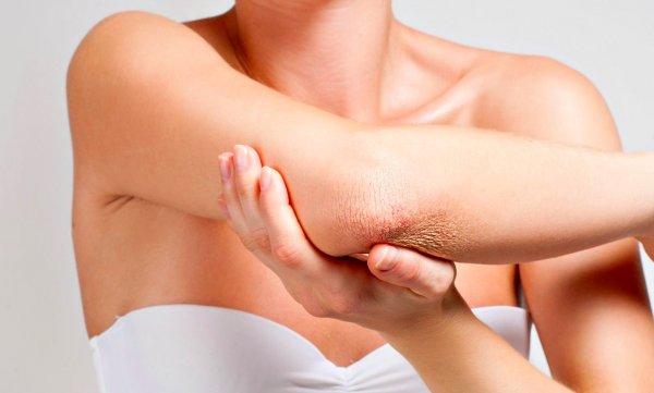 Врачи назвали витамин, который регулирует сухость кожи