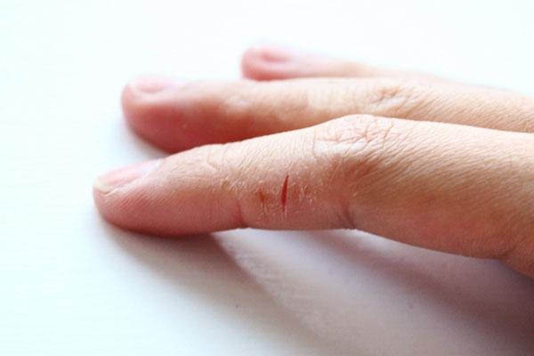 Трескается кожа на руках – отчего и почему?