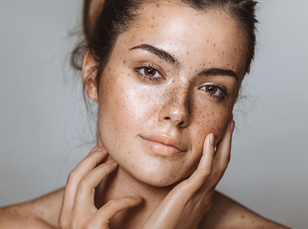 Как избавиться от пигментных пятен на лице — советы специалистов
