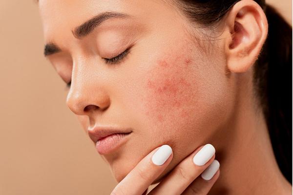 Названы лучшие продукты для проблемной кожи