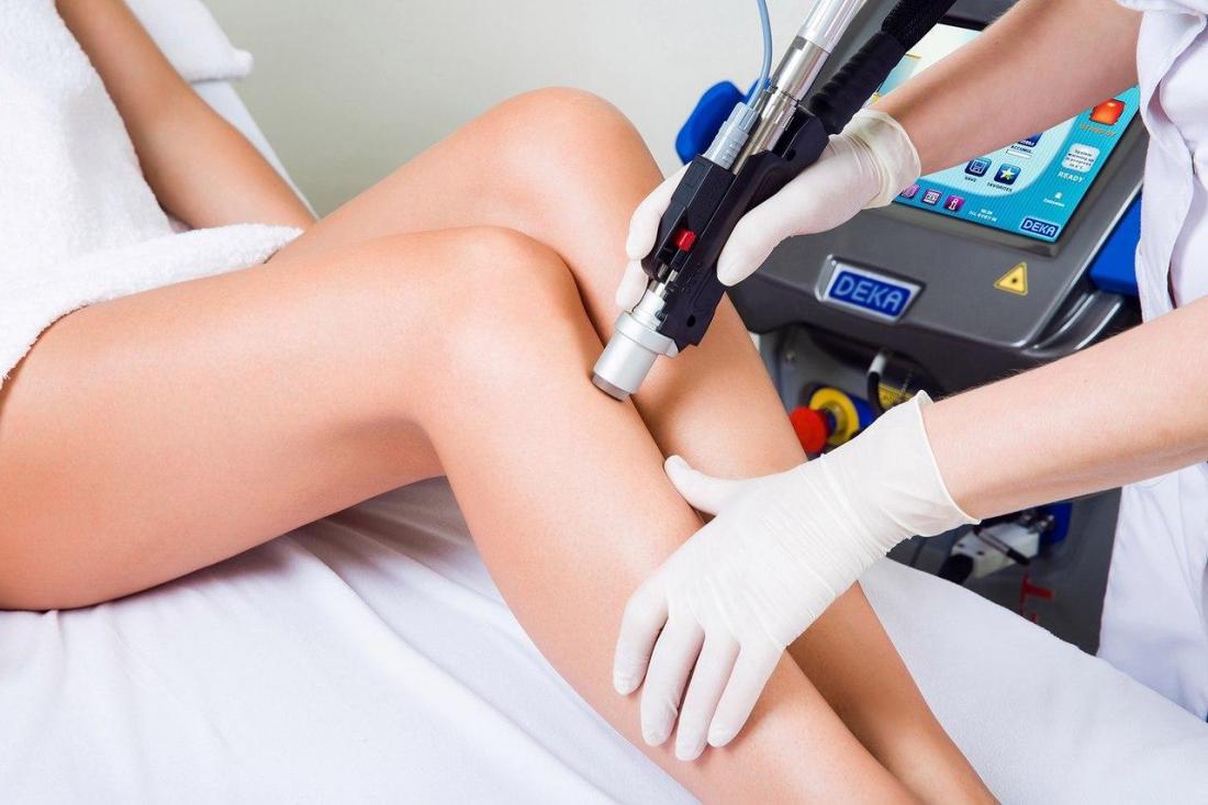 Лазерная эпиляция: особенности процедуры и результат от ее проведения